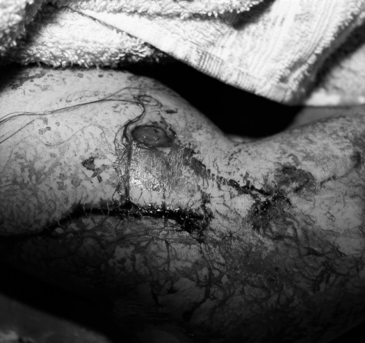 arm entry wound