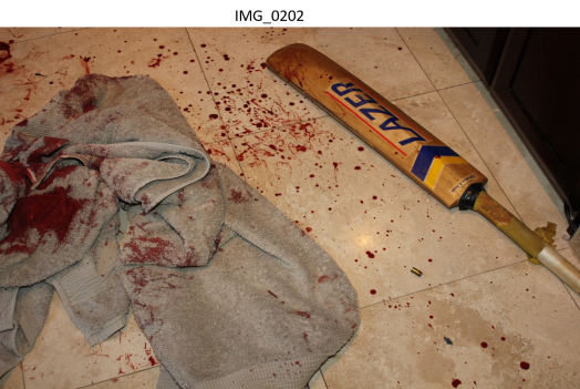 bloody towels and bat