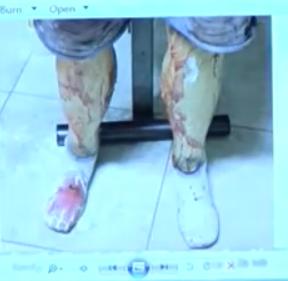 prosthetic legs
