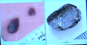 bullet fragment and injury comparison