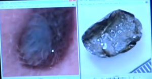 bullet fragment and injury comparison2
