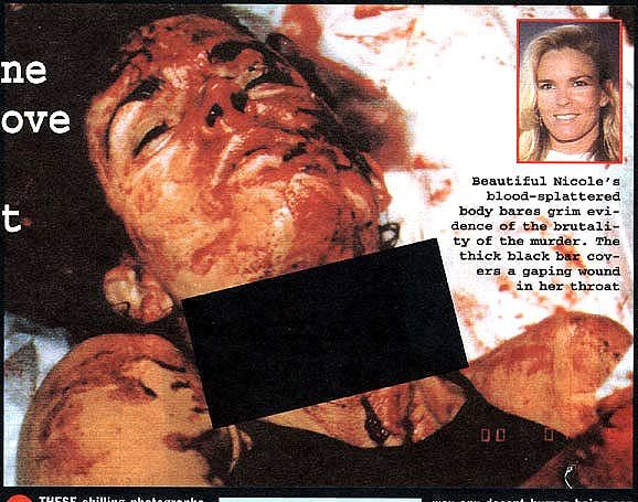 Nicole injury 2